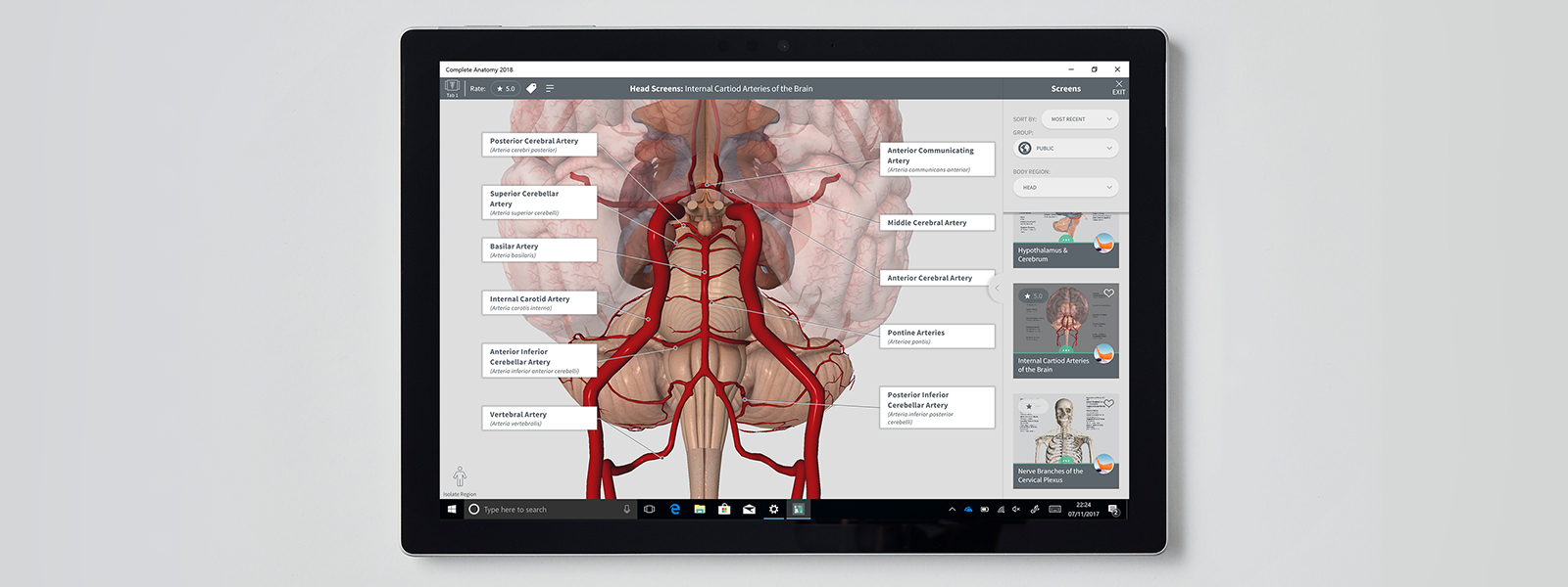 Software showing human anatomy on a Surface device